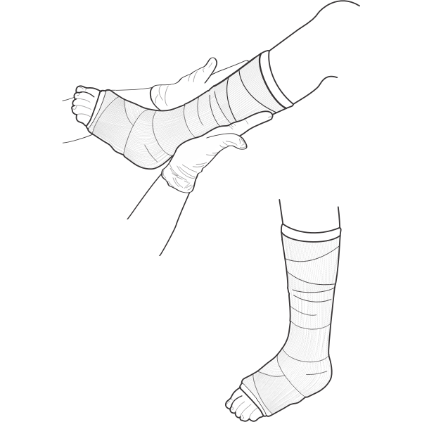 Vector illustration of leg cast examination