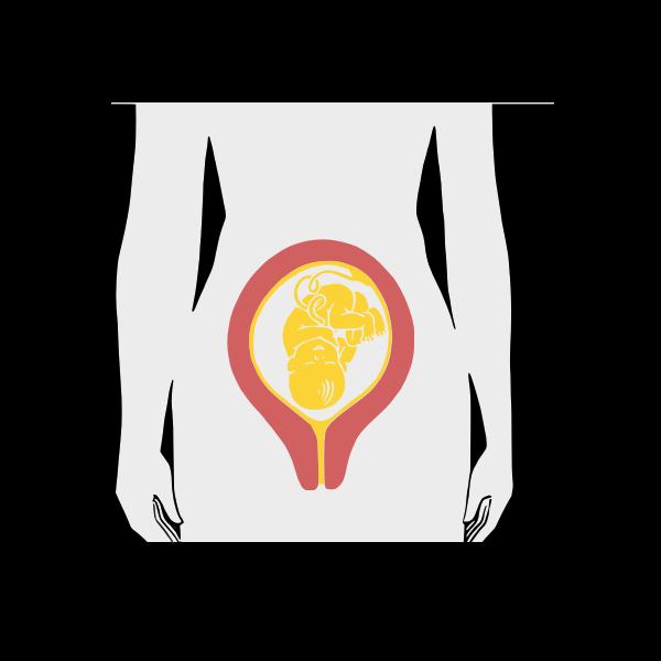 Antepartum woman