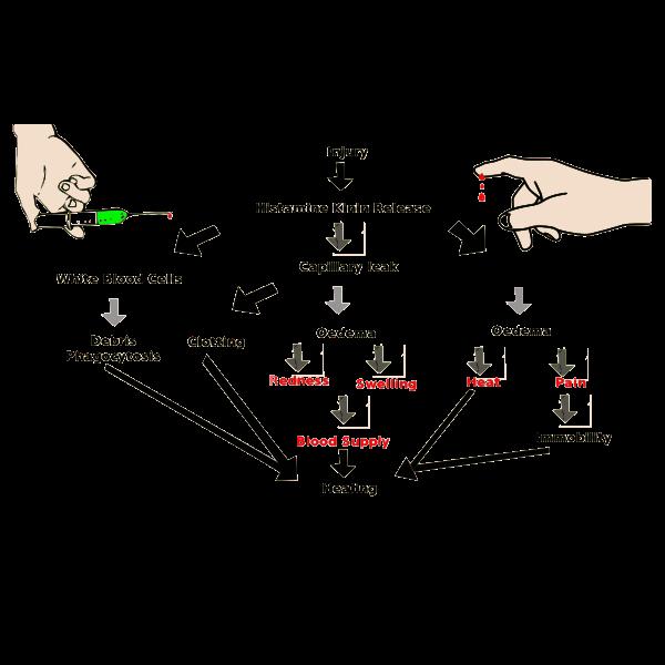 Inflammation scheme vector image