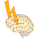Vector image of stroke
